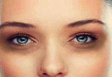 کبودی زیر چشم